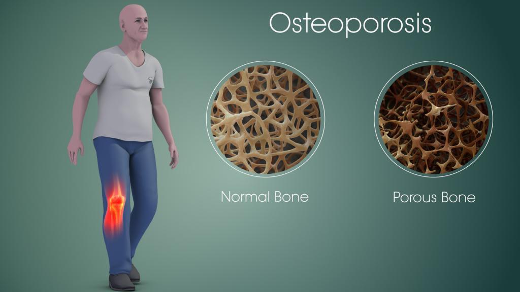جلوگیری از پوکی استخوان با سرکه سیب