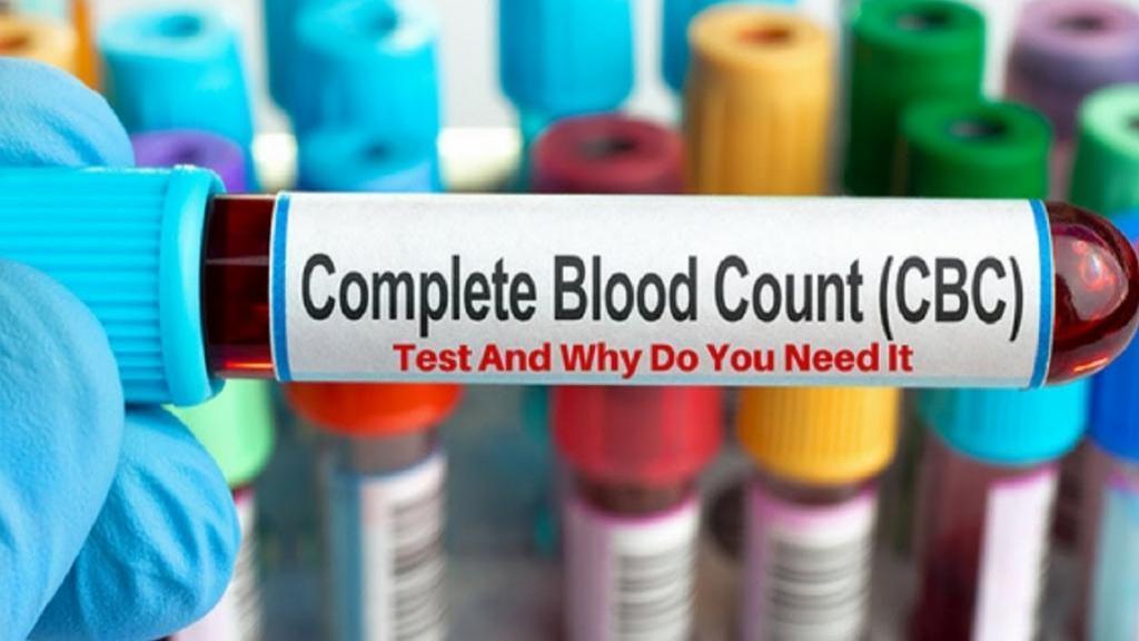 آزمایش شمارش کامل سلول های خونی (CBC)؛ علت تجویز، روش انجام و نتایج آن