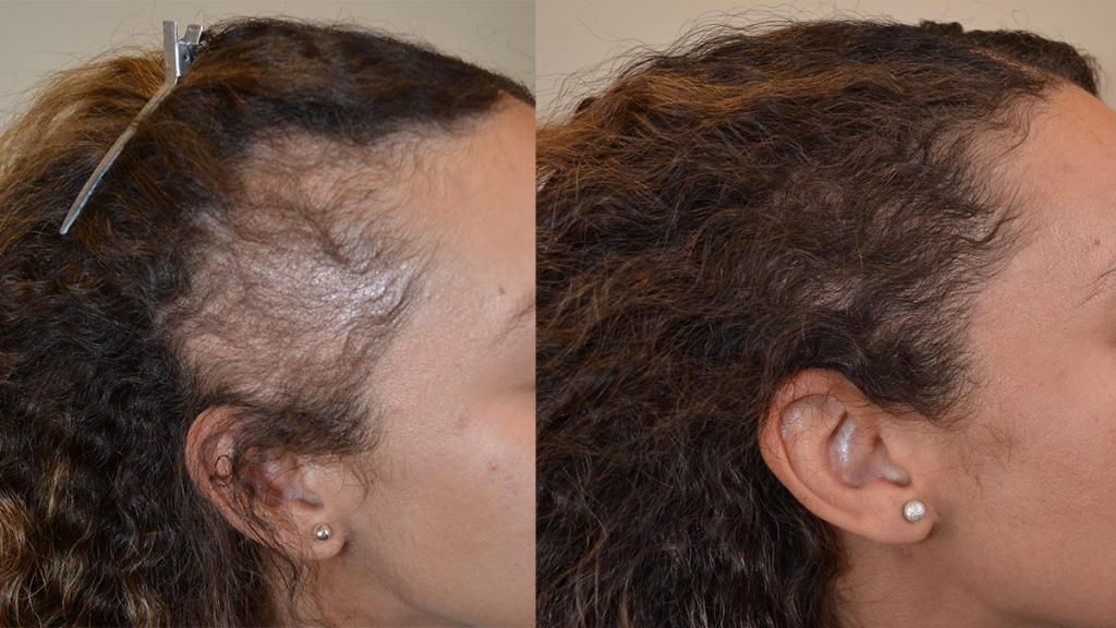عوامل که باعث ریزش مو در بارداری می شود