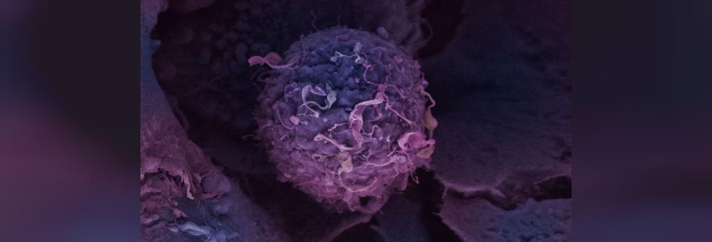 یشگیری از سرطان پستان