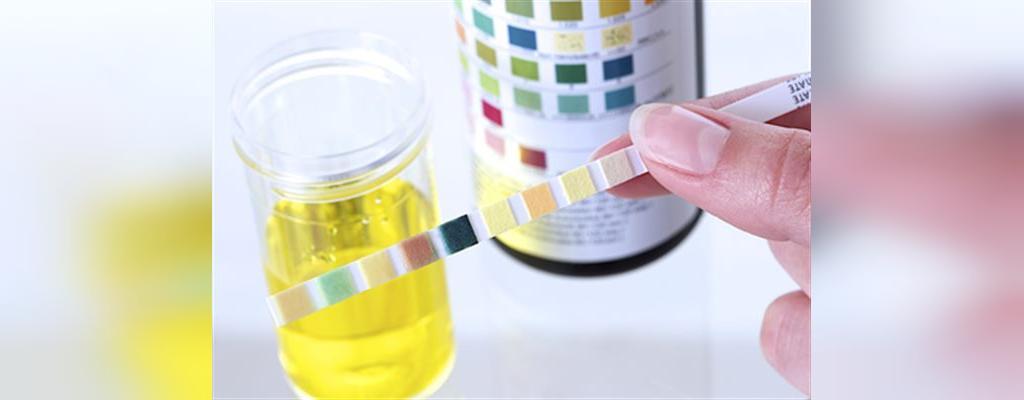 آزمایش های روتین در دوران بارداری