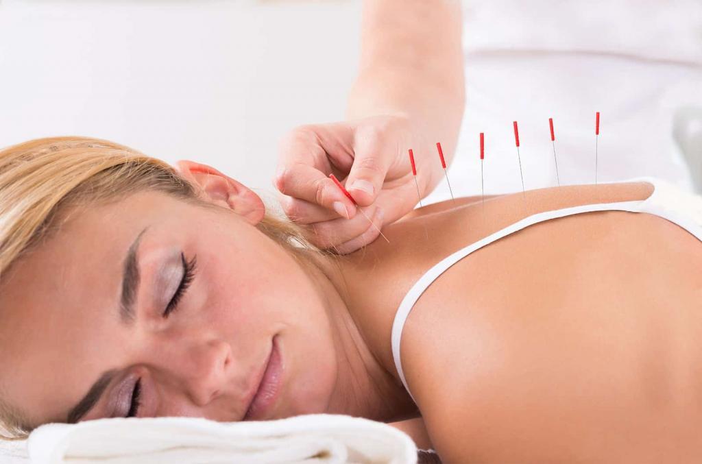 استفاده از طب سوزنی برای درمان عادت ماهانه نامنظم